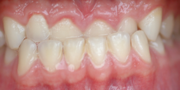invisalign-correcting-anterior-crossbit-before