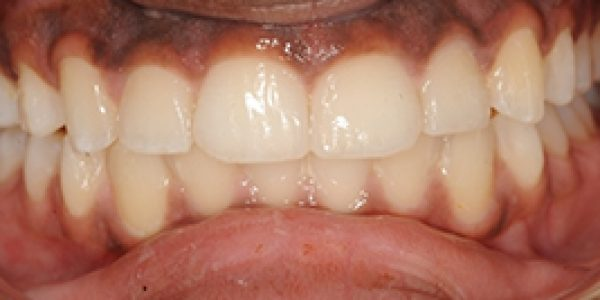 2014-11-20 D700 Before Gum Lift