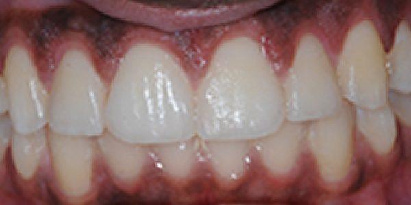 2014-12-18 D700 After Gum Lift1