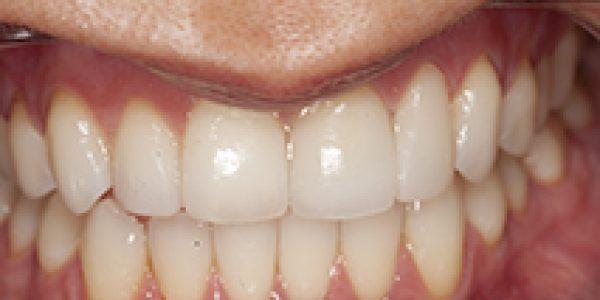 2016-08-10 D700 After Bonding Front teeth