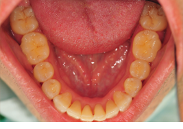 crowding-after-lower-arch-invisalign-final