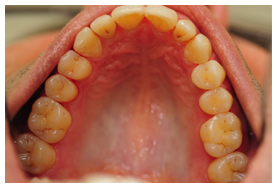 crowding-after-upper-arch-invisalign-final