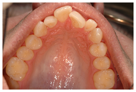 crowding-before-upper-arch-invisalign-final
