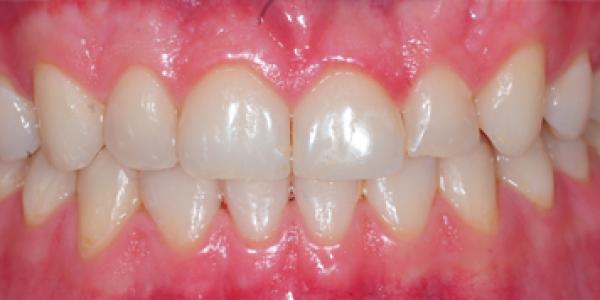 invisalign-correcting-anterior-crossbit-after